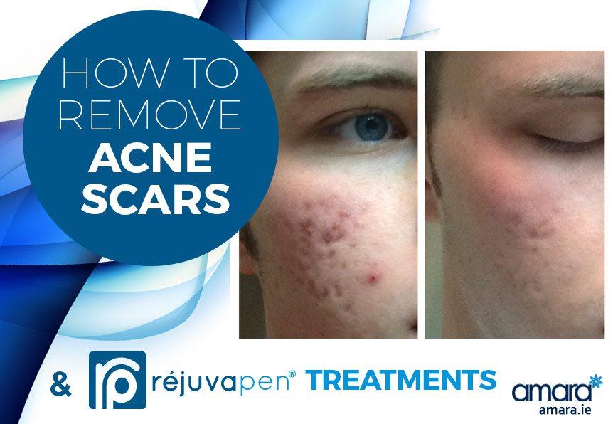 How to Remove Acne Scars - Amara Dublin