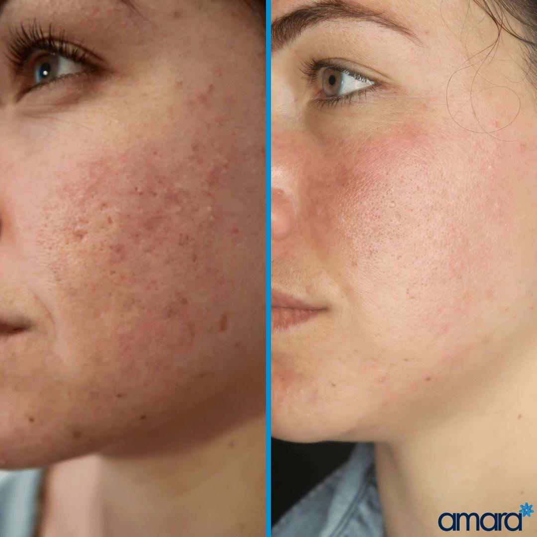 How To Improve Pigmentation - Amara Clinic