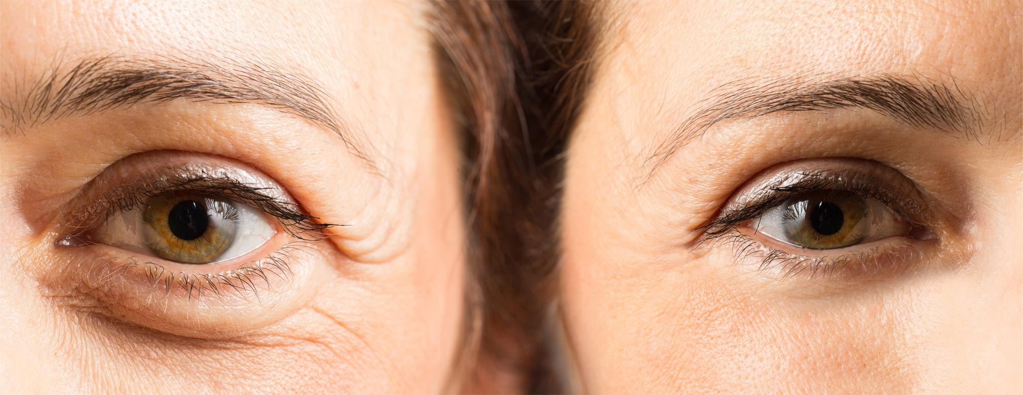 crow's feet lines, anti-wrinkle injections