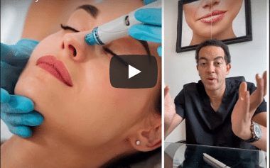 Hydrafacial explained by Dr Paul